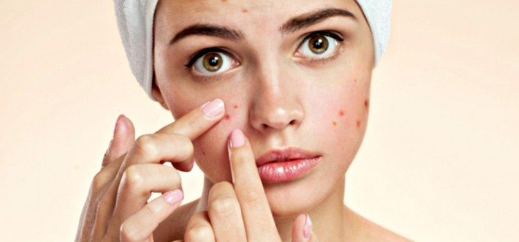What are the Best Treatments for Acne?