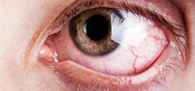 Viscotears - Artificial Tears