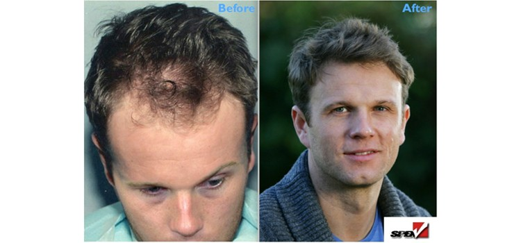 Worried about Hairloss?