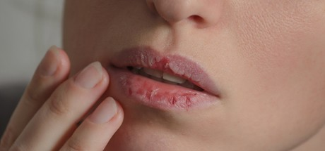 The Ultimate Dry Lip Therapy Guide