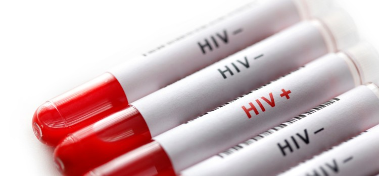 HIV: Promising new approach